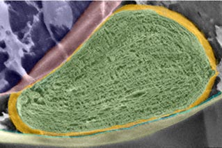 Scanning electron microscopy of a chloroplast