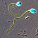 For scientific purpose fluorescently labeled sperm cell of human