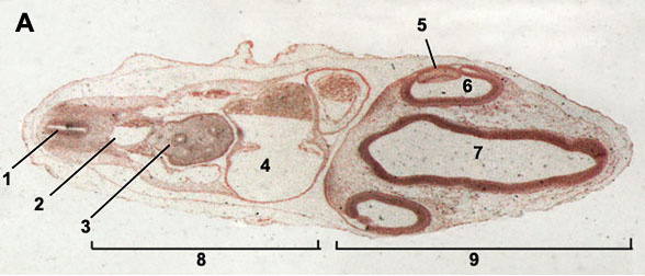 Cross section through an embryo of chicken 72 hours after fertilization
