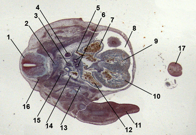 embryo of mouse, 13 days old; heart formation
