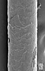 Surface of a scalp hair: scale structure
